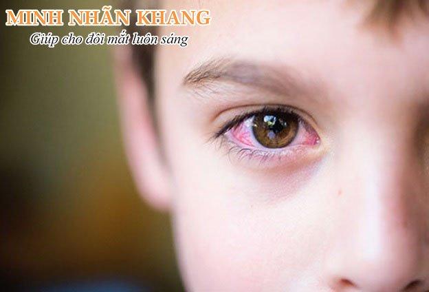 Mắt bị xuất huyết dưới kết mạc xuất hiện vệt đỏ ở lòng trắng